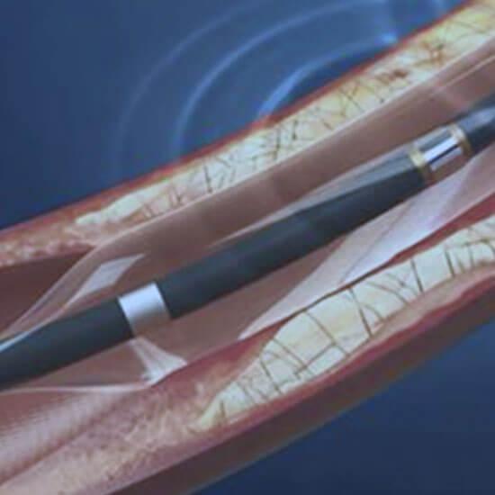 Venous Angioplasty