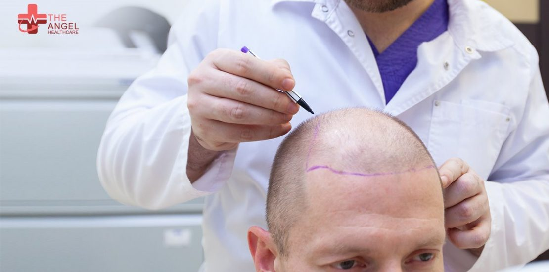 Know-all-about-hair-transplant