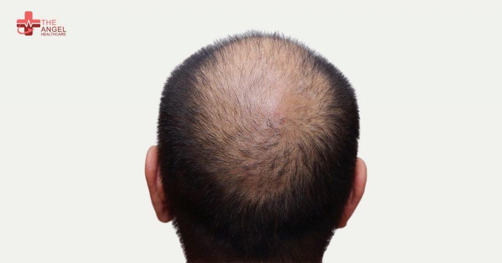 Causes-of-Hair-Loss-in-men