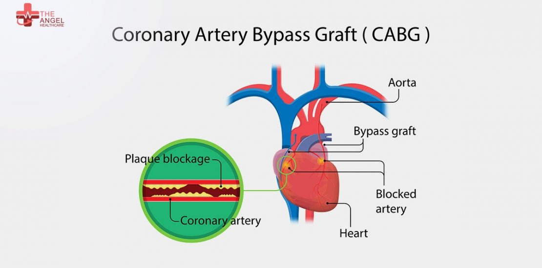 Types-of-Heart-Surgery
